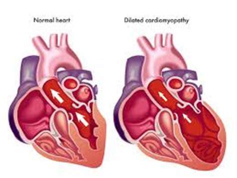 Heart Failure & Cardiac Arrhythmias - McGill University